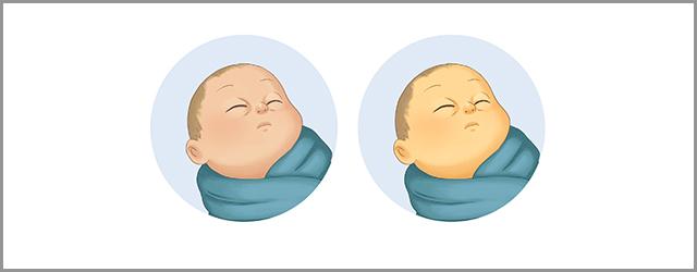 علت زردی نوزادان و راههای درمان